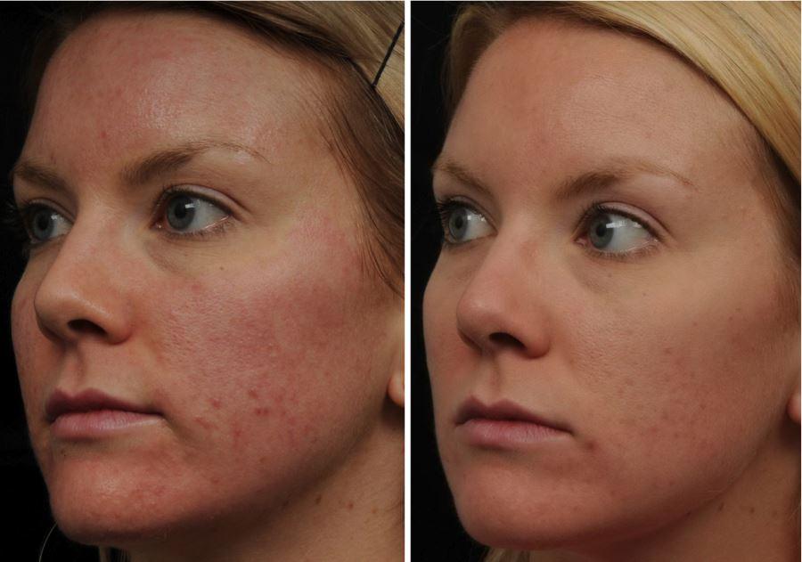 Фото №2 - до и после фраксель лазерной терапии