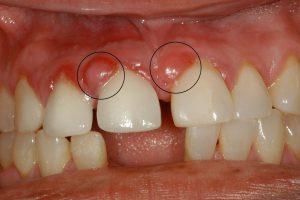 Гранулема зуба - лечение лазером