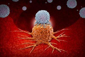 Иммунотерапия при онкологии