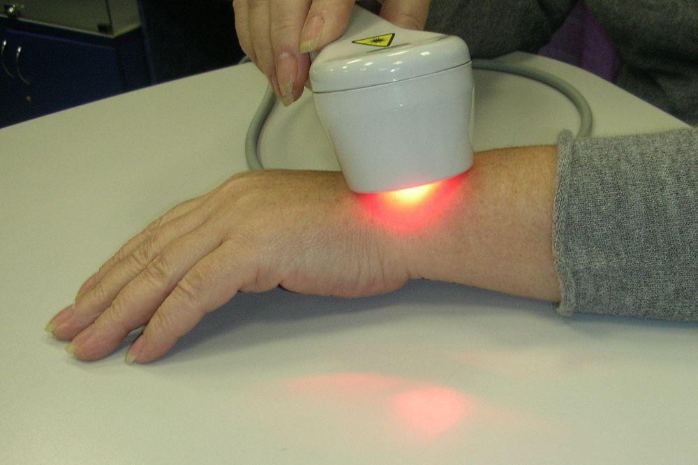 Лазерная терапия при переломе лучевой кости