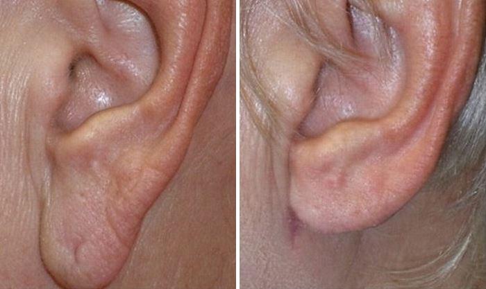 Фото до и после лазерной пластики мочки уха