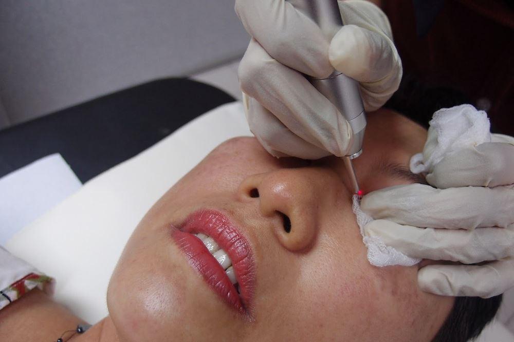 Лазерное удаление милиумов на лице