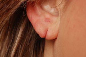 Лазерная пластика мочки уха