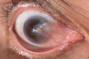 Птеригиум глаза - удаление лазером