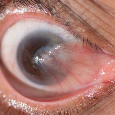 Птеригиум глаза - что это такое