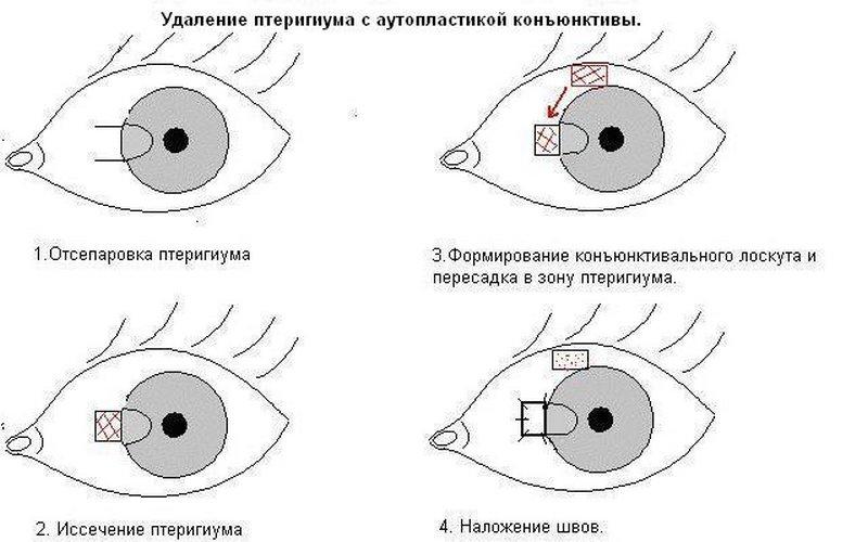 Аутопластика после удаления птеригиума глаза