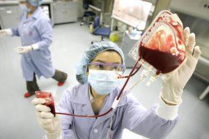 Трансплантация взрослых стволовых клеток