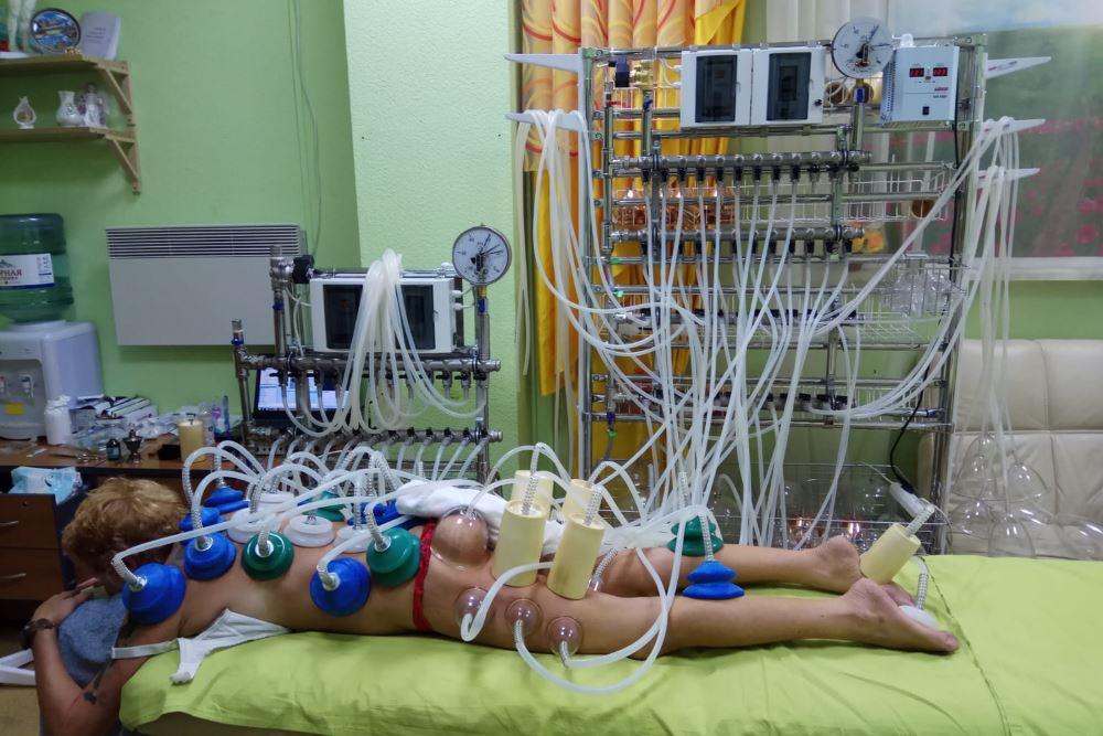 Аппарат вакуумной терапии