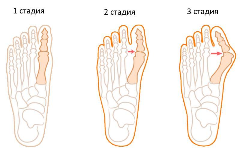 Стадии вальгусной деформации стопы