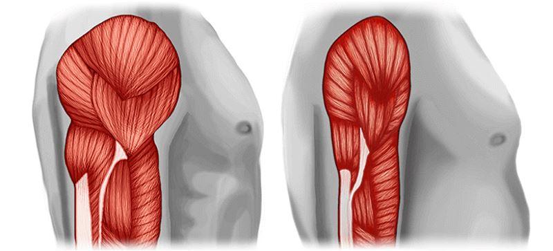 Атрофия мышц при саркопении у пожилых людей