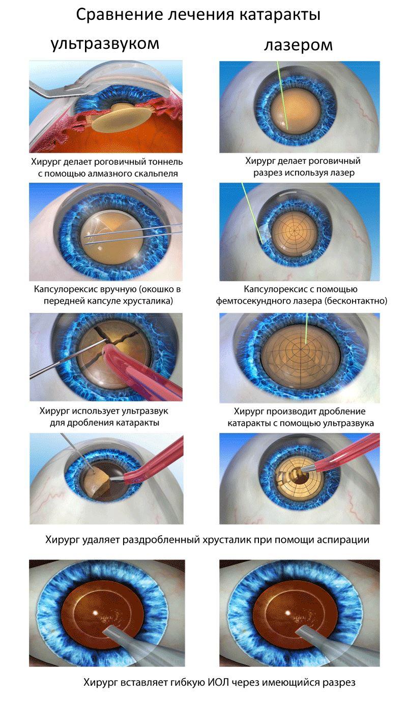 Сравнение методов лечения катаракты ультразвуком и лазером