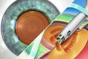Удаление катаракты лазером или ультразвуком - что лучше
