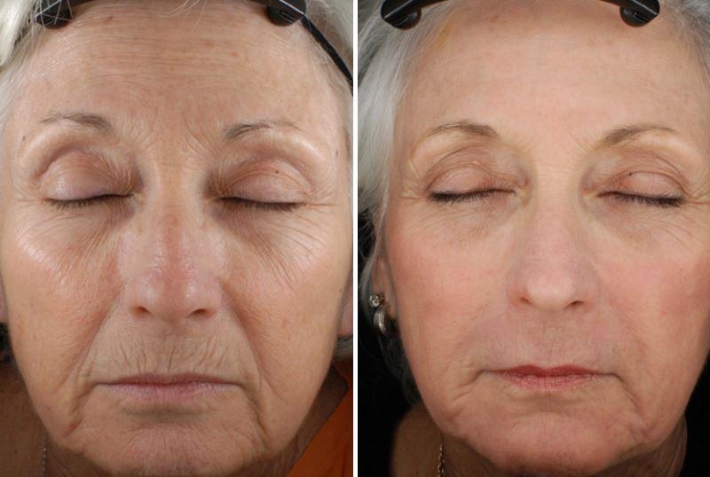Фото №2 - до и после лазерной мезотерапии лица