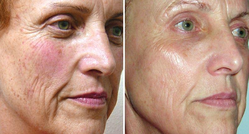 Фото №3 - до и после лазерной мезотерапии лица