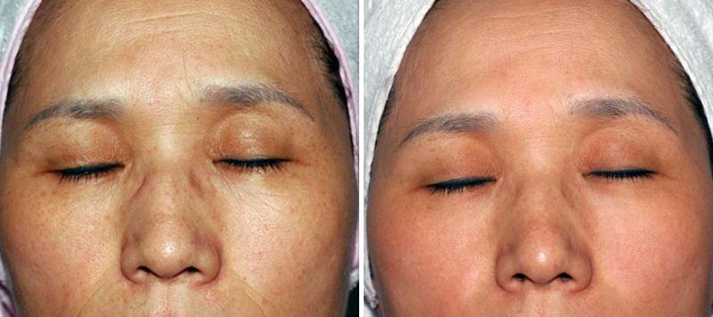 Фото №1 - до и после лазерной мезотерапии лица