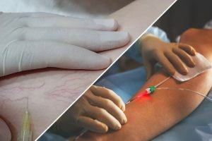 Что лучше - склеротерапия или лазерная коагуляция