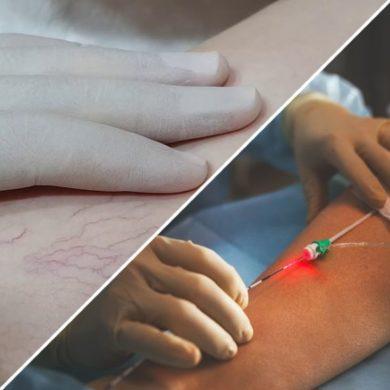 Что лучше склеротерапия или лазерная коагуляция