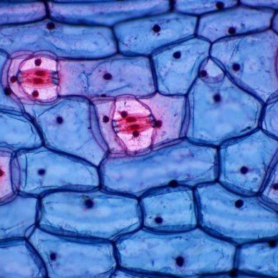 Когда клетка превращается в свалку