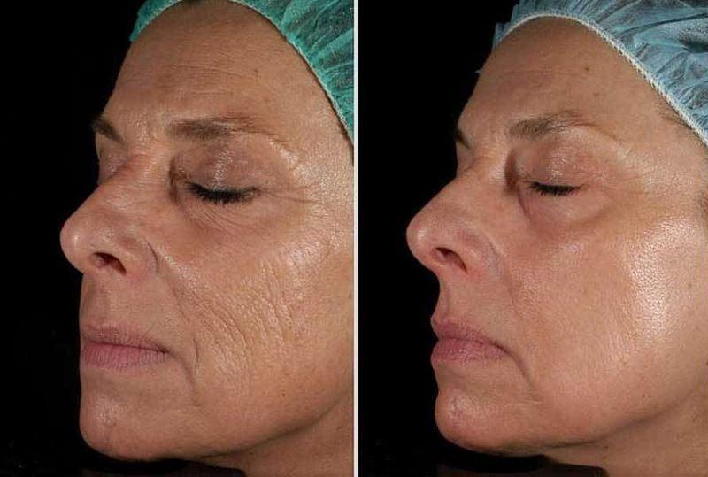 Фото до и после лазерного термолифтинга лица