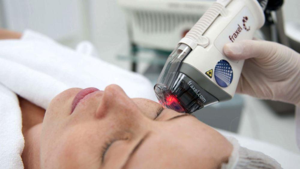 Процедура лазерного термолифтинга лица