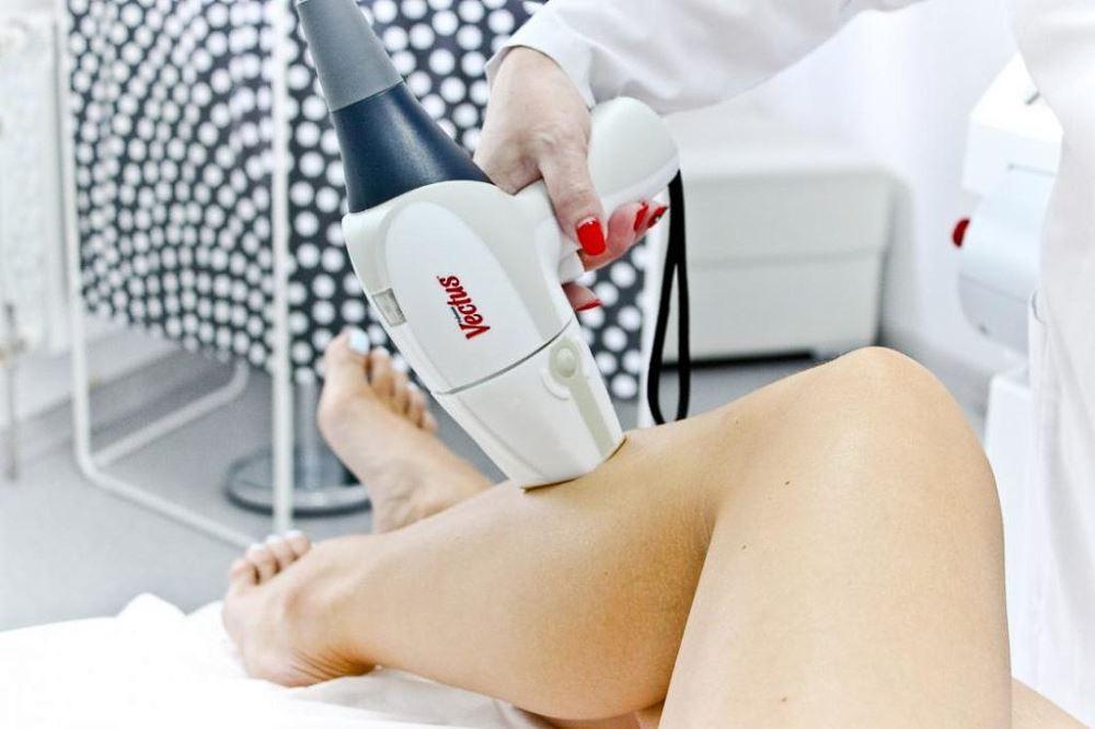 Как проходит процедура лазерной эпиляции