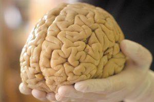 Как стареет мозг