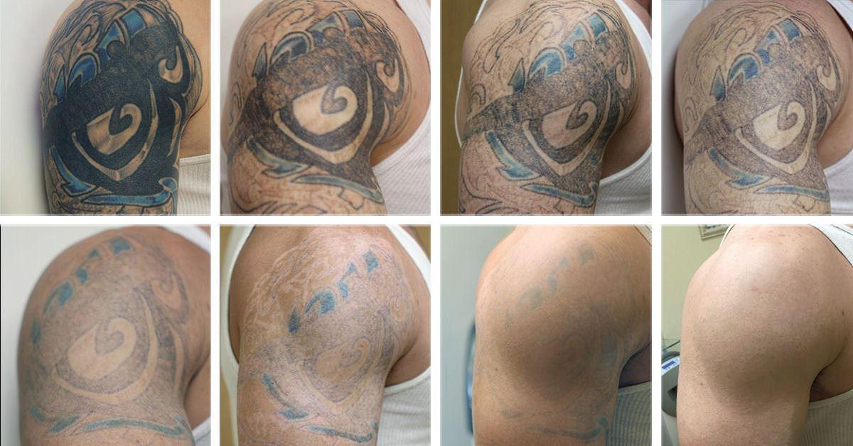 Результат удаления тату неодимовым лазером после семи процедур