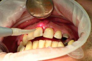 Пародонтит - лечение лазером