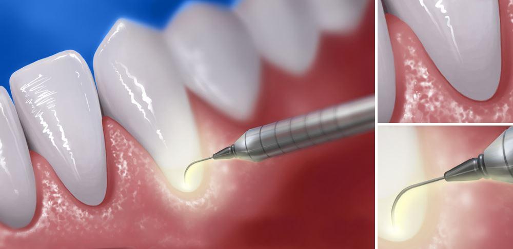 Как выглядит применение лазера при лечении пародонтита