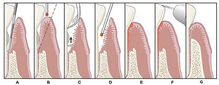 Порядок лечения пародонтита лазером