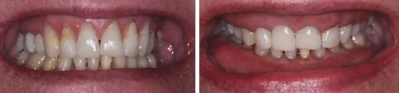 Фото зубов до и после лазерного лечения