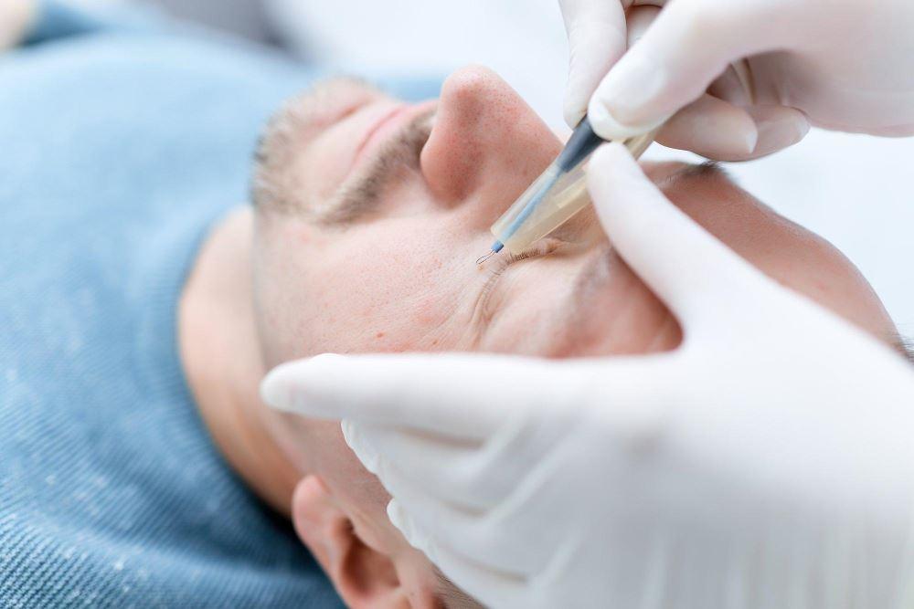 Процедура удаления бородавки радиоволновым методом
