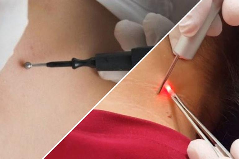 Чем лучше удалять папилломы лазером или электрокоагуляцией