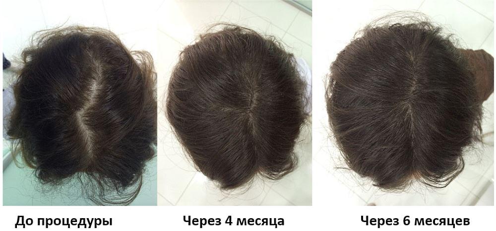 Фото пациентки до и после мезотерапии волос