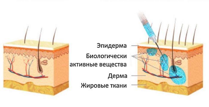 Воздействие гиалуроновой кислоты на кожу головы