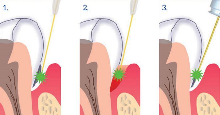 Как проходит лечение гингивита лазером