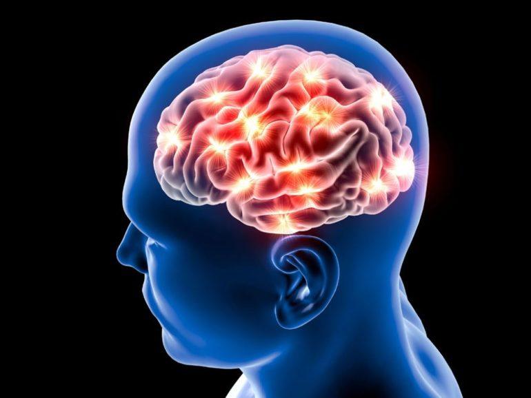 Необычные медицинские синдромы головного мозга