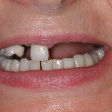 Развитие памяти и стоматология