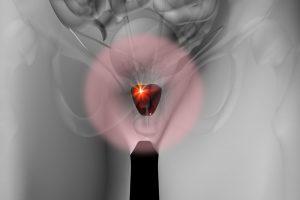 Эффективность точечного лазерного удаления опухоли простаты