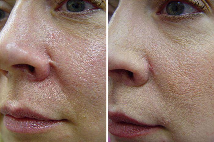 Фото пациентки до и после пилинга эрбиевым лазером
