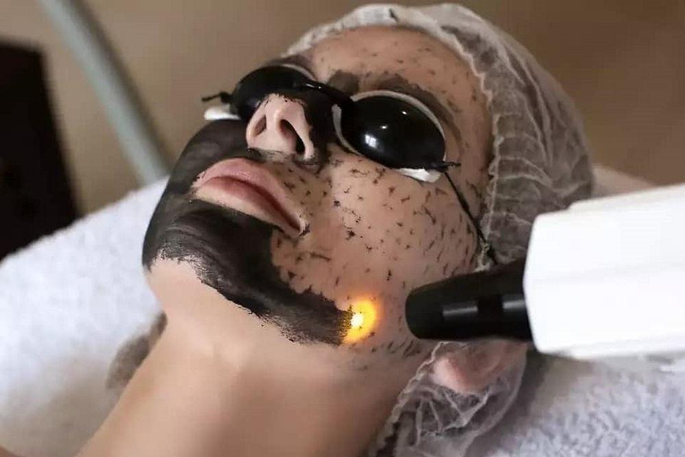 Процедура карбоксидного лазерного пилинга
