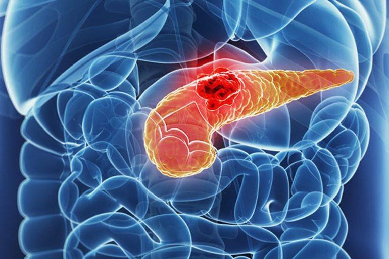 Потенциальное новое комбинированное лечение рака поджелудочной железы