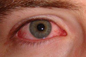 Синдром сухого глаза и ДЭНС терапия