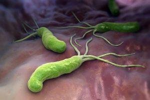 Как воспаление вызывает рак желудка
