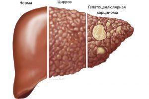 Гены, связанные с наиболее распространенным раком печени