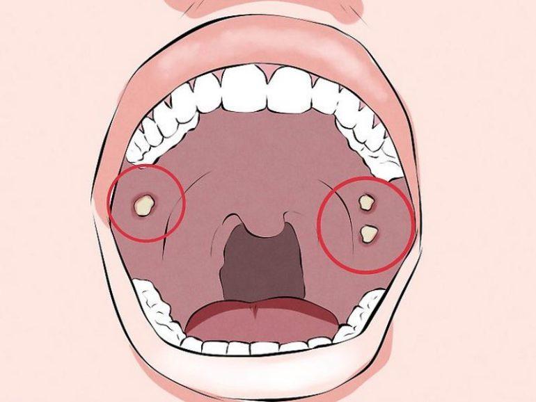 Биомаркеры рака полости рта