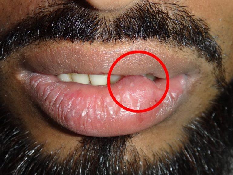Удаление ретенционной кисты на губе лазером