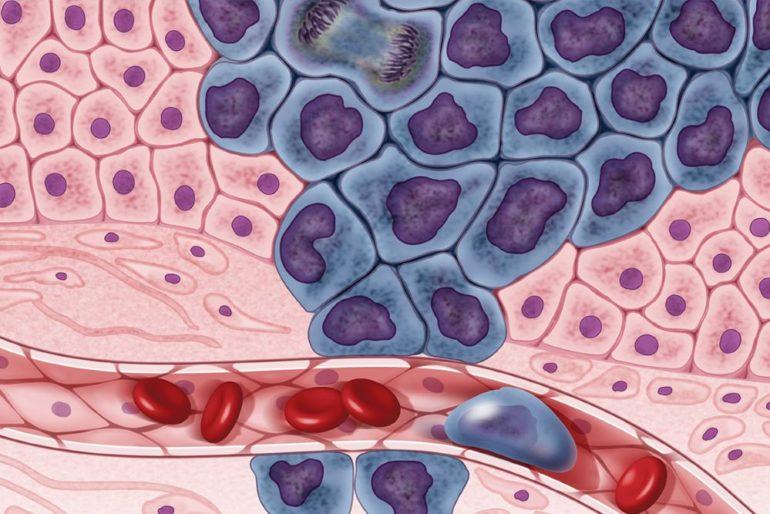 Раковые клетки быстро изменяются, приспосабливаясь к окружающей среде