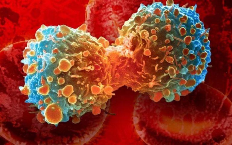 Проливая свет на метаболизм рака
