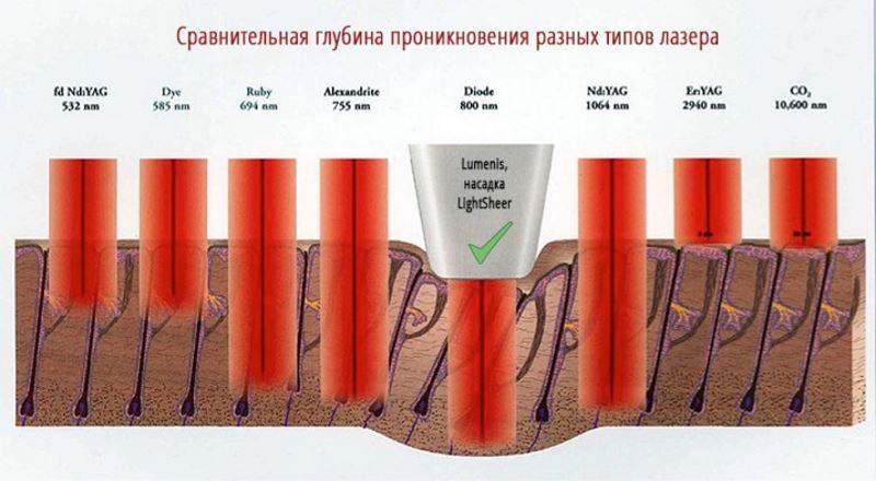 Глубина проникновения разных типов косметических лазеров